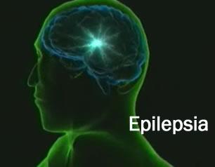 Epilepsia video